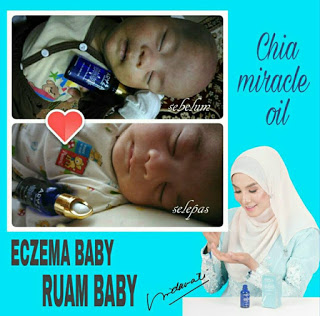 ruam bayi miracle oil